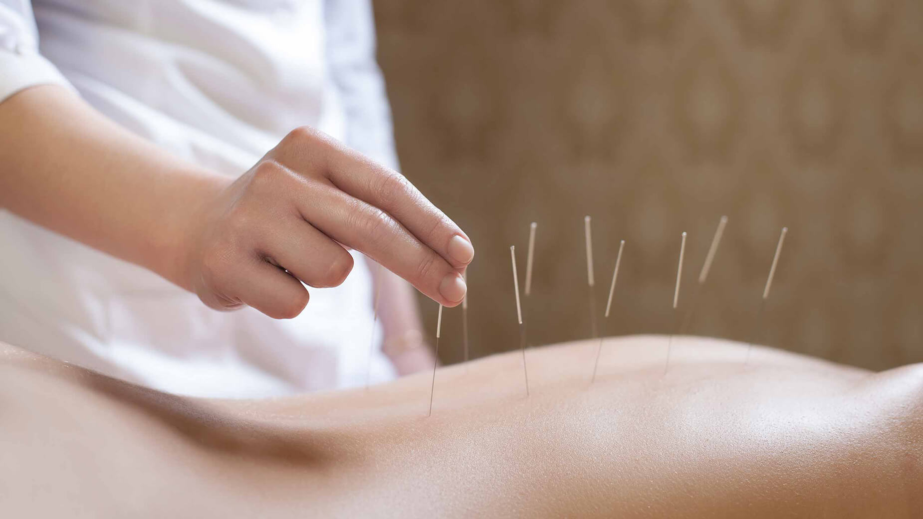 Hornchurch Essex ACUPUNCTURE